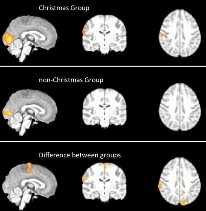 Kerst in je brein